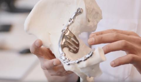 Nieuwsbericht: Refereeravond: 3D toepassingen in de traumachirurgie