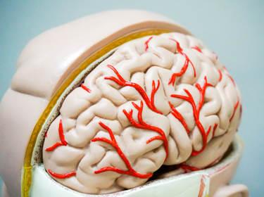 Nieuwsbericht: Invoering kwaliteitsstandaard 'Acuut Herseninfarct' succesvol